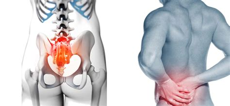 Sacroiliac Joint Pain and Dysfunction