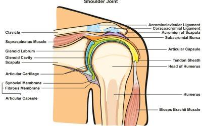 Shoulder injury: labral tear
